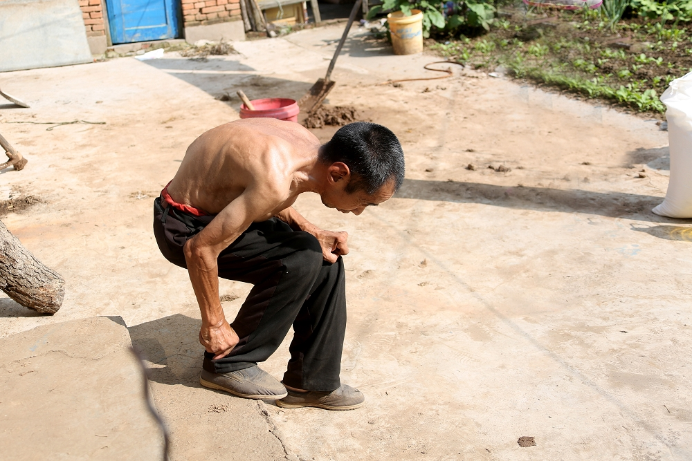 B4.王振国的哥哥脊柱弯曲已不能直立行走